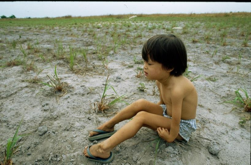 Vietnamesisches Kind mit verkrüppelten Armen (1989)